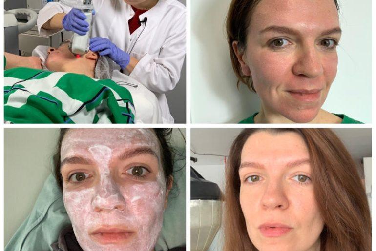 Zabieg laserem Halo trwa ok. 50 minut i tuż po nim skóra jest zaczerwieniona jak po oparzeniu słońcem. Należy ją mocno natłuszczać, ale już po 5 dniach wygląda dobrze, a po trzech miesiącach jest zdecydowanie młodsza. Na wszystkich tych zdjęciach nie mam makijażu